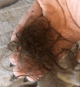 Hair Falling Out